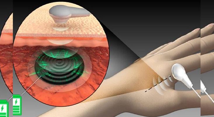 کاشت ایمپلنت پزشکی با باتری زیستی تسهیل شد