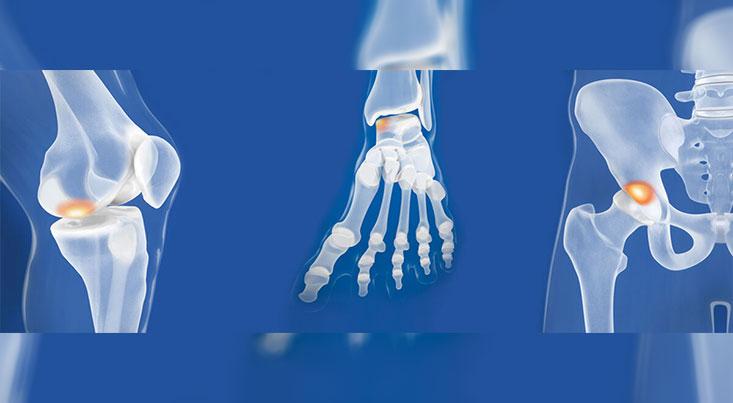 فناوری چاپ سهبعدی برای بازسازی غضروفهای مفصلی