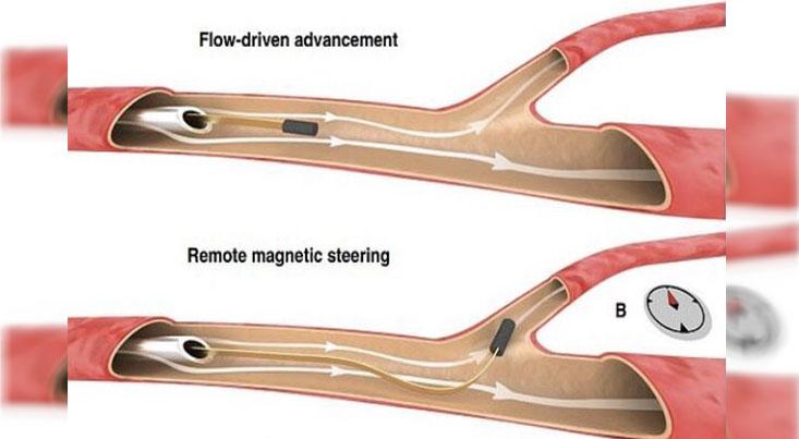 ساخت سیم نازکی که در رگ های مغزی حرکت می کند